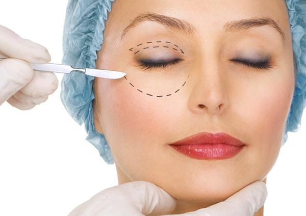 Un'intervento di blefaroplastica per migliorare l'estetica di palpebre e occhi